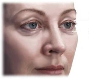 Get rid of dark patches under eyes