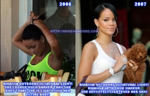 Celebrity skin bleaching