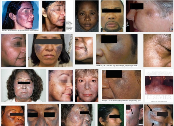 Dangerous Side Effects Of Hydroquinone In Skin Whitening Products ...