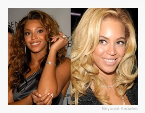 Beyonce Before And After Skin Bleaching
