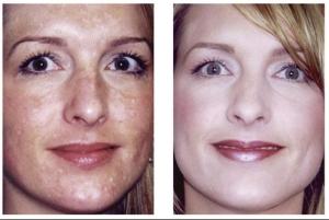 Hypo-pigmentation treatment