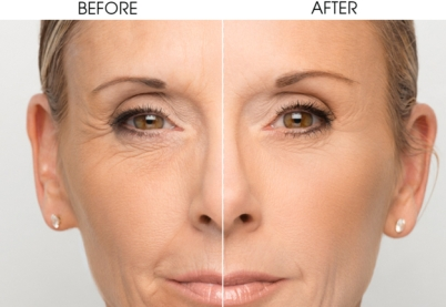 before-and-after-skin-renew